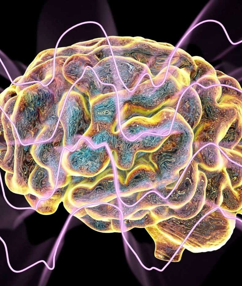 brain with pink and yellow lines coming out of it